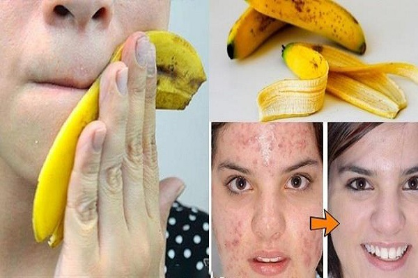 stop-throwing-away-banana-peels-10-ways-can-use